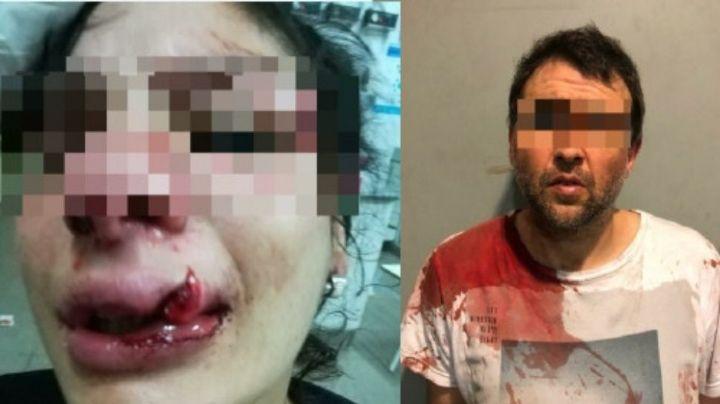 Desfiguró a su novia a golpes con el casco de su moto porque...