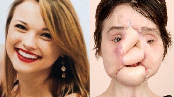 La conmovedora historia de la joven que recibió un trasplante de cara. FOTOS