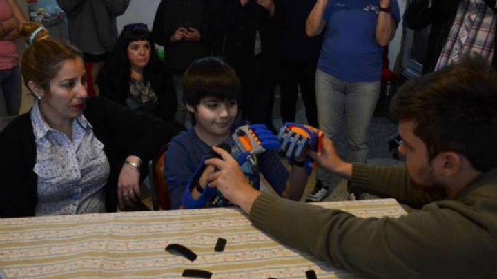 Nene que nació sin dedos recibió sus manos 3D
