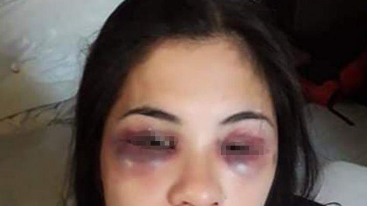 Masacró a golpes en la cara a su novia y la cortó con un vidrio