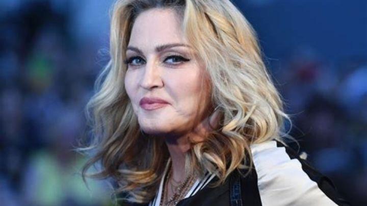 ¡Al límite! Descubrí aquí el delicado tratamiento que realiza Madonna ¿para recuperar su juventud?