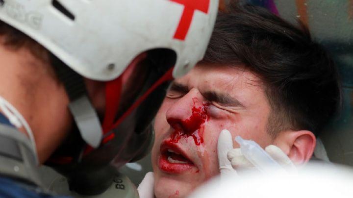 Informe del INDH confirmó que 352 personas resultaron con daños oculares tras las protestas en Chile